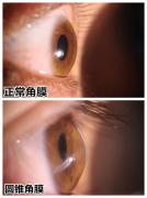 早中期圆锥角膜可控,得益于角膜胶原交联手术